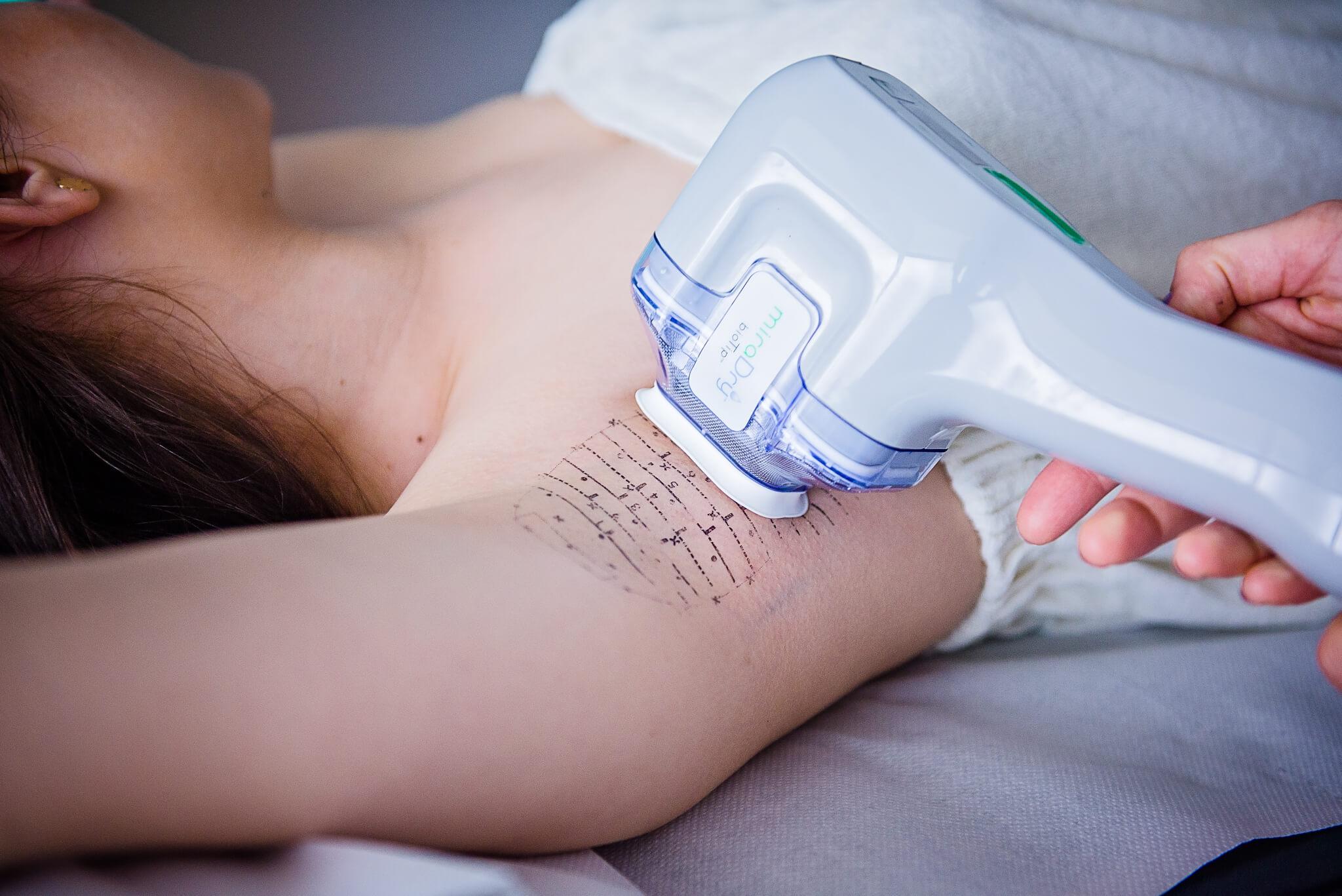 Hyperhidrosis treatment using the MiraDry method