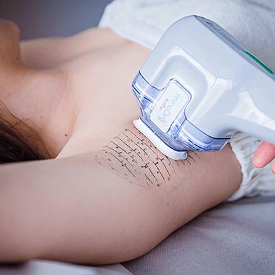 Leczenie nadpotliwości / Botoks / MiraDry