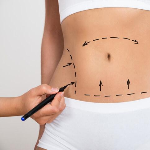 Plastyka brzucha – abdominoplastyka