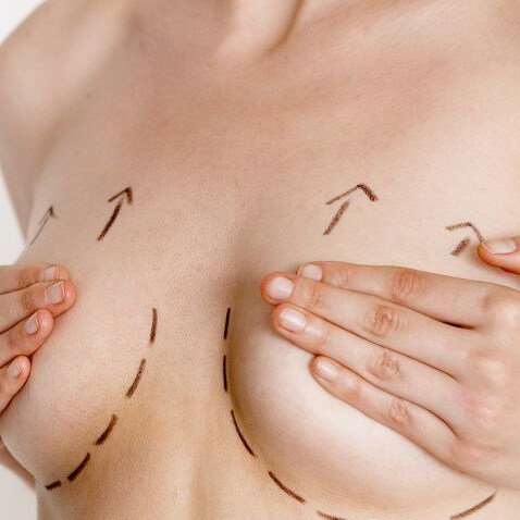 The breast lift surgery