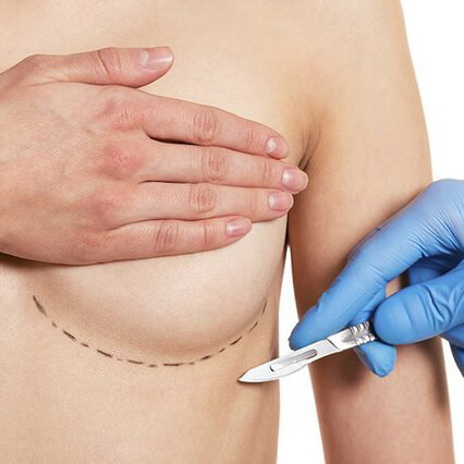 Breast augmentation using implants